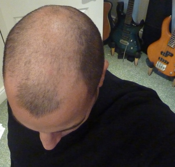 2011 - Head shaved to number two all over.