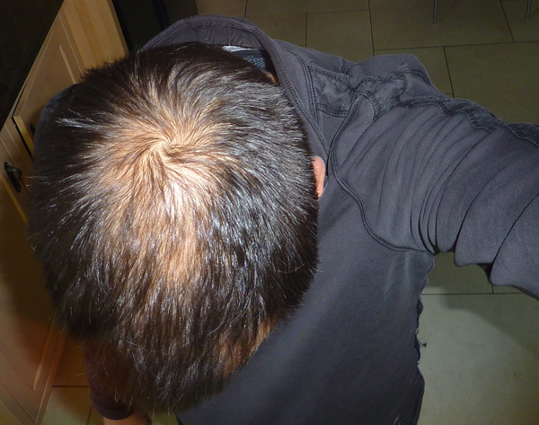 May 2012 - Increased hair density after using both Dutasteride and Minoxidil for 18 months