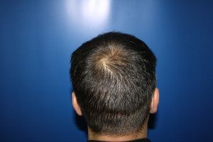 Back of head showing scar