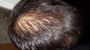 Photo shows the extent of my thinning crown