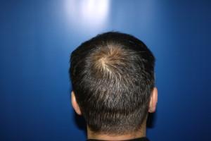 Back of head showing scar